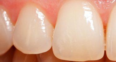"""""""El sangrado de encías puede indicar enfermedad periodontal"""""""