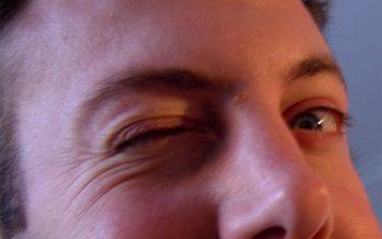 """Dr. Bardallo: """"El primer síntoma del Síndrome de Tourette suele ser un tic facial"""""""