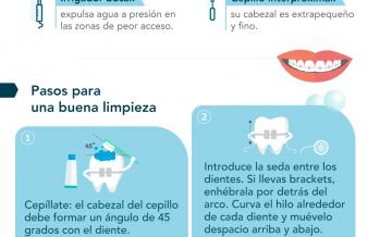 Cómo limpiar el aparato de ortodoncia paso a paso